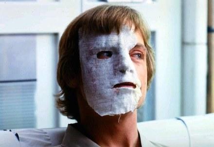 """El rostro de Mark Hamill en """"El imperio contraataca"""", supuestas secuelas de su accidente."""